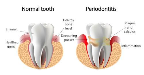 a diagram of periodontis | periodontist in st peterburg fl