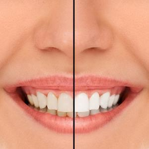 a before and after image of teeth whitening | teeth whitening st petersburg fl