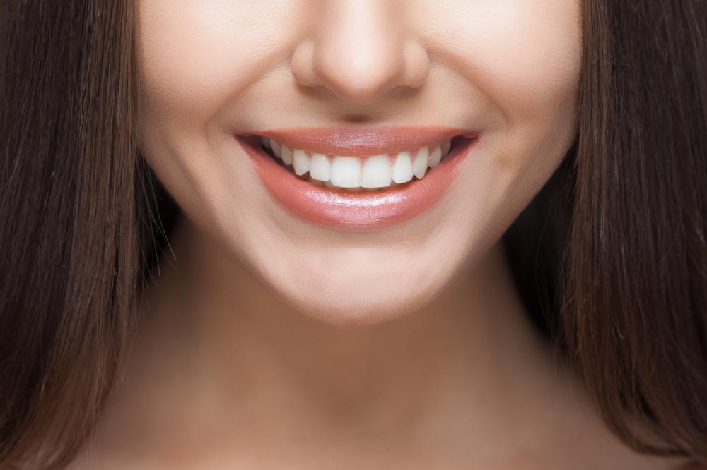 a close up of a woman's smile | teeth whitening st. petersburg fl