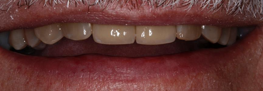 two dental crowns sitting on worn teeth, restoring their look and function | st petersburg dental crowns