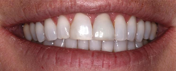 a tooth after having a ceramic crown placed | st petersburg dental crowns