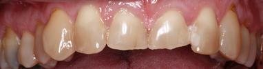 teeth before short term orthodontics | dentist in st petersburg