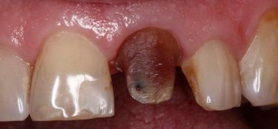 a decaying tooth before a dental crowns | dental crowns in st petersburg fl
