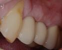 teeth after implant crowns have been placed, restoring look and function | st petersburg dental implants