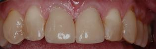teeth following additional filling placed on after short term orthodontics | st petersburg dental fillings