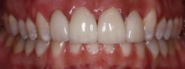 a person's mouth after crowns | st petersburg dental crowns
