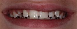a chipped front tooth, fixed with composite resin | st petersburg fl dental fillings