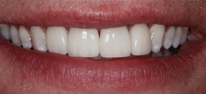 a smile after dental crowns | dental crowns st petersburg fl