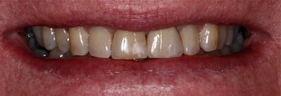 a tooth that has had a dental crown placed on it restoring it's look and function | st petersburg dental crown dentist