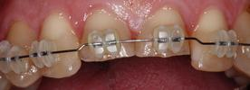 teeth during a short term orthodontic treatment | st petersburg fl dentist